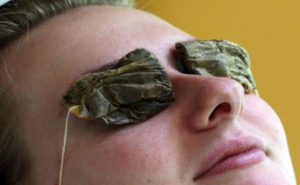 tea-bags-eye-treatment-flash-burn-300x185.jpg